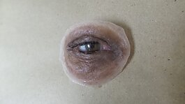 An eye prosthetic device custom-made at the Buffalo Center for Anaplastology